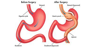 Der findes tre former for fedmeoperationer: Gastric sleeving, gastric bypass og gastric banding