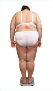 En fedmeoperation behøver ikke være svaret på dit vægt problem